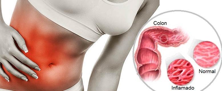 mejores probioticos colon irritable