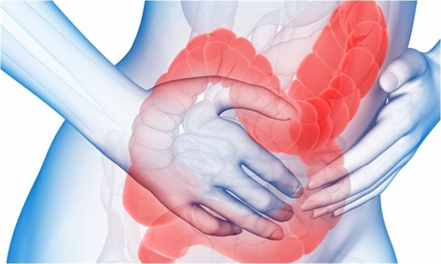alimentos probióticos para colon irritable