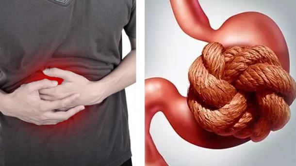 cuando tomar suplementos probioticos